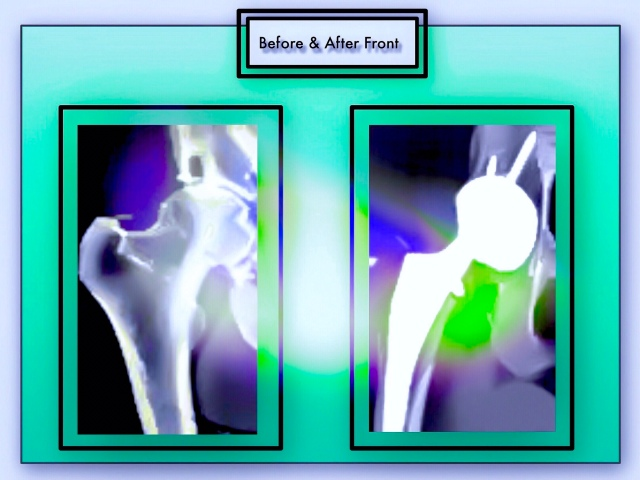 Below: My Before & After X-rays. A Hip Replacement Involves Removing A Large Amount of Bone That Comprised the Original Hip Joint and Replacing It with Titanium & Plastic Protheses