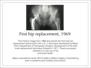 Mayo's in 1969 is Generally Regarded as the 1st Modern Day Hip Replacement